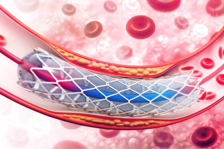 Drug Eluting Stent: What is It & How It is Implanted? | Meril Life