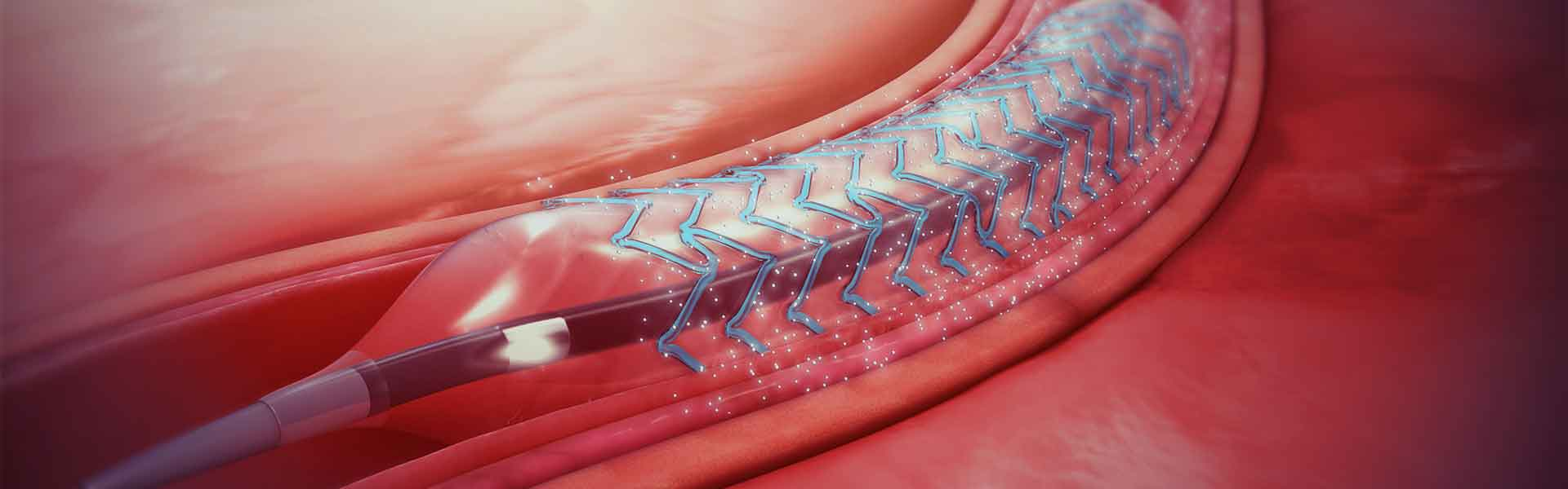 What Is A Better Option For Angioplasty? A Bare Metal Stent Or A Drug Eluded Stent?