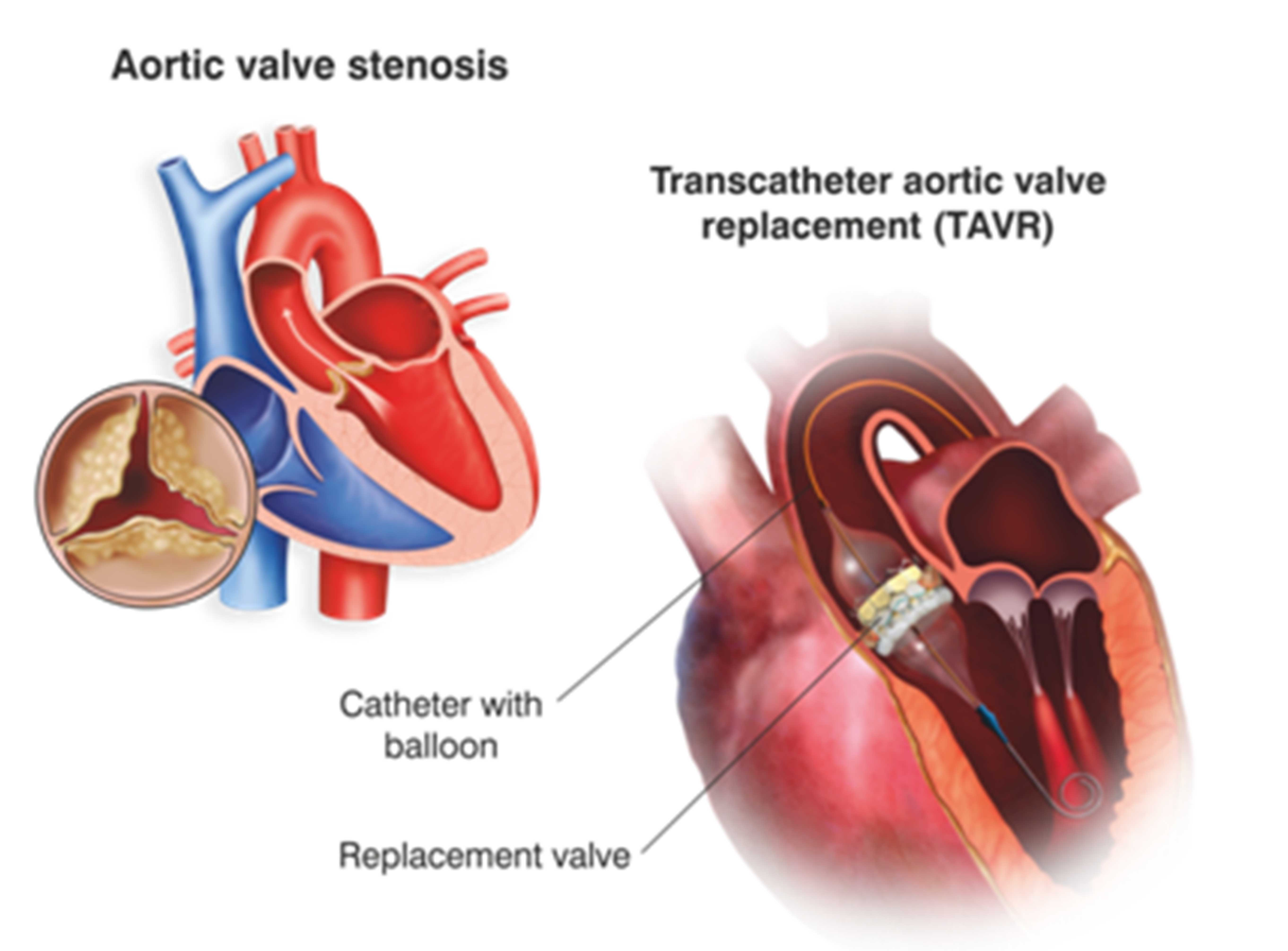 What is TAVR?