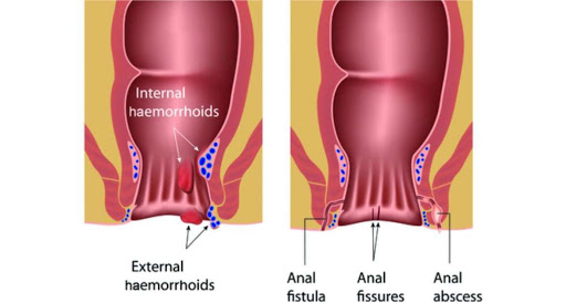 Anal fistula - Symptoms & Treatment