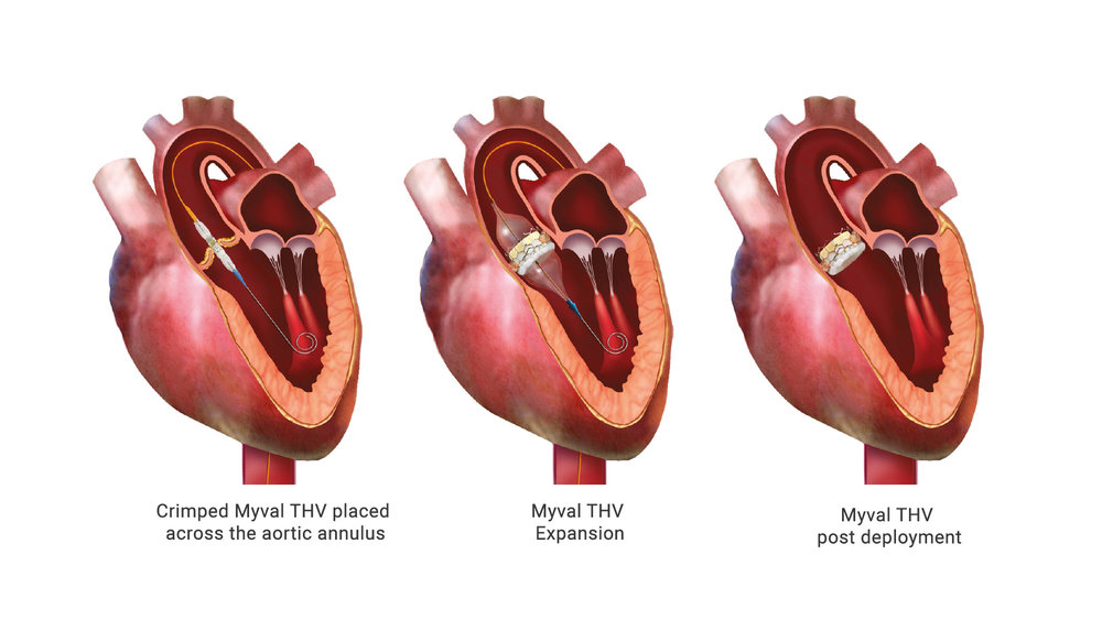 TAVR: A powerful ally in the battle against Aortic Valve Stenosis