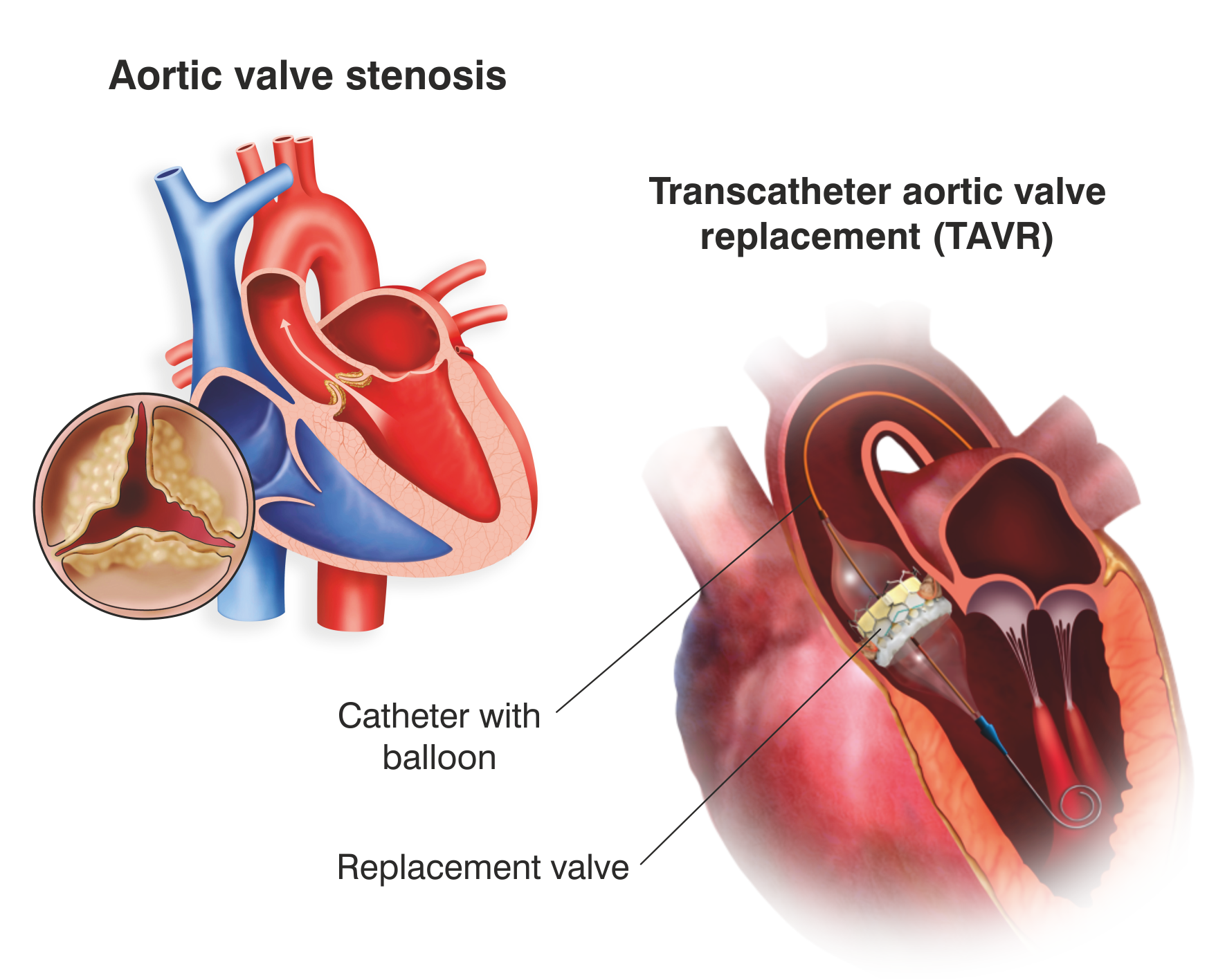 Transcatheter Aortic Valve Implantation (TAVI) or Transcatheter Aortic Valve Replacement (TAVR)