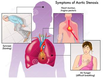 Symptoms of aortic stenosis