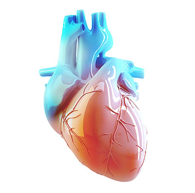 Vascular Access Devices: Medical Devices for Vascular Intervention | Meril  Life